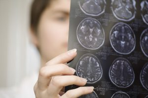 Leaky brain and the blood brain barrier